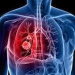 Μήπως έχετε άσθμα;
