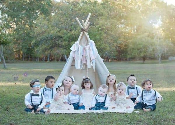 Η ομορφιά παιδιών με σύνδρομο Down